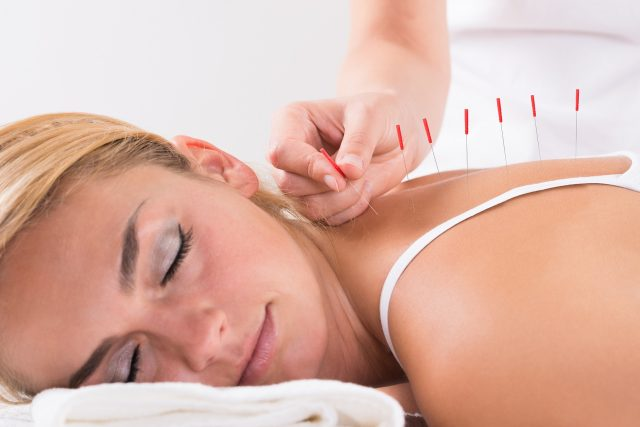needles acupuncture therapy on customer's back at salon